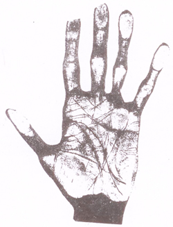 Suicide's Hand