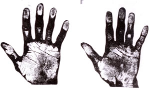 The Hand of Hon. Joseph Chamberlain, M.P. and His Son